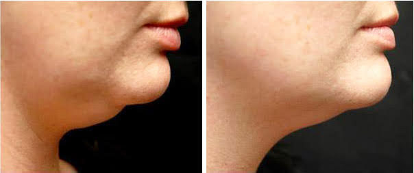 A before-and-after of a client who received eight sessions over four weeks. Photo courtesy of Forever Wellness.